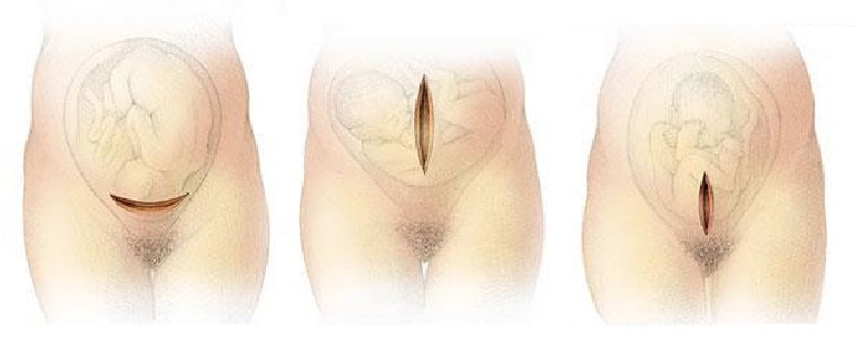 types of stitches after cesarean section