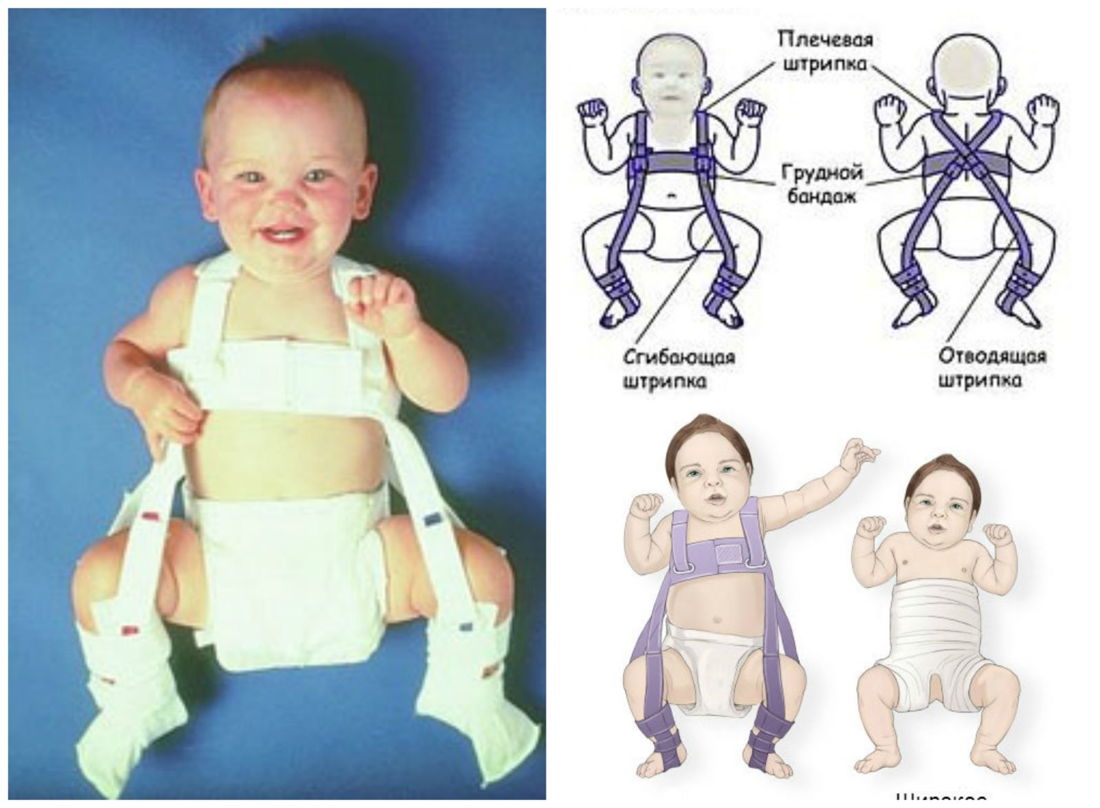 Hip dysplasia: how to act to parents of infants - image №4