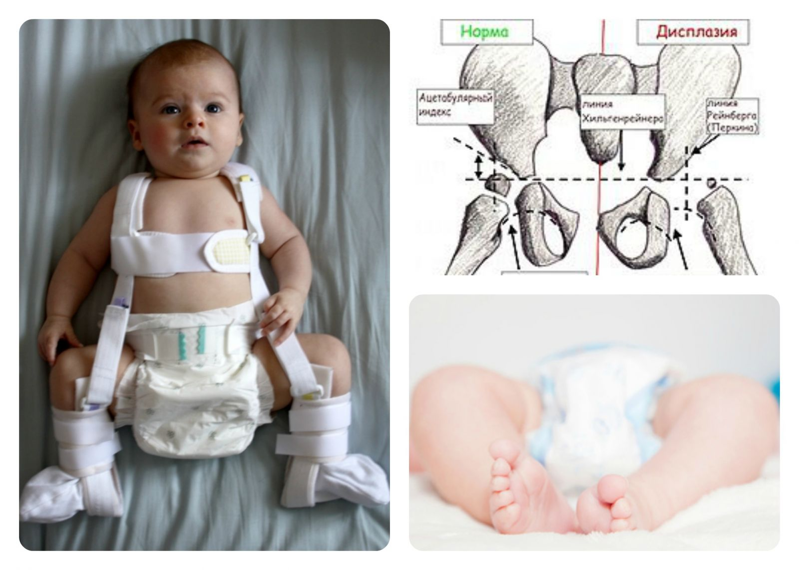 Dysplasia of the hip joints: how to act to parents of infants - image number 1