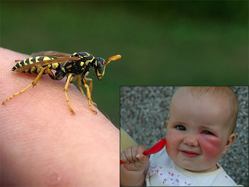 wasp bite, wasp bitten, what to do if a wasp bitten, what to do if a child was bitten by a wasp, wasp bitten by a child, wasp waxes what to do