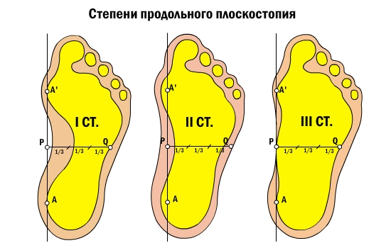 Flat feet in a child: how dangerous is this diagnosis? - image number 1