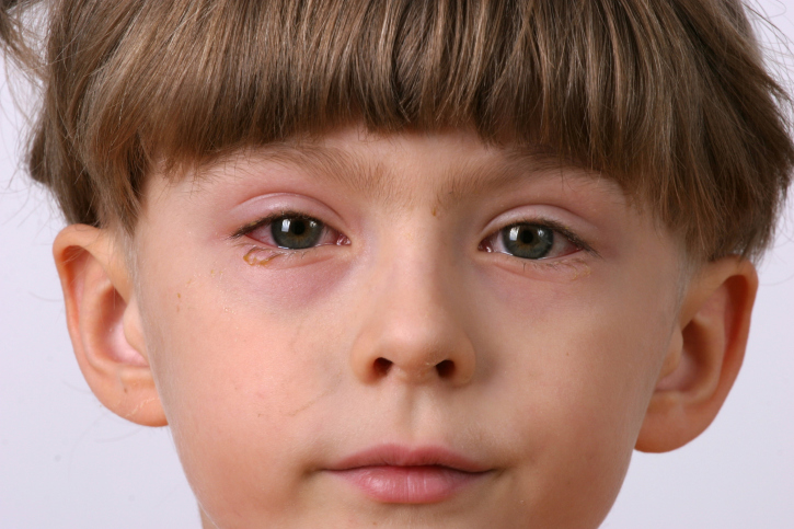 Conjunctivitis in a child: causes and treatment - image №1