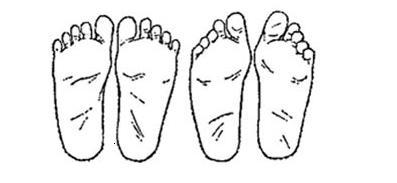 Flat feet in a child: how dangerous is this diagnosis? - image number 2