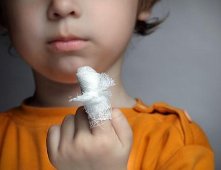 Injuries in children: how to provide first aid? - image number 2